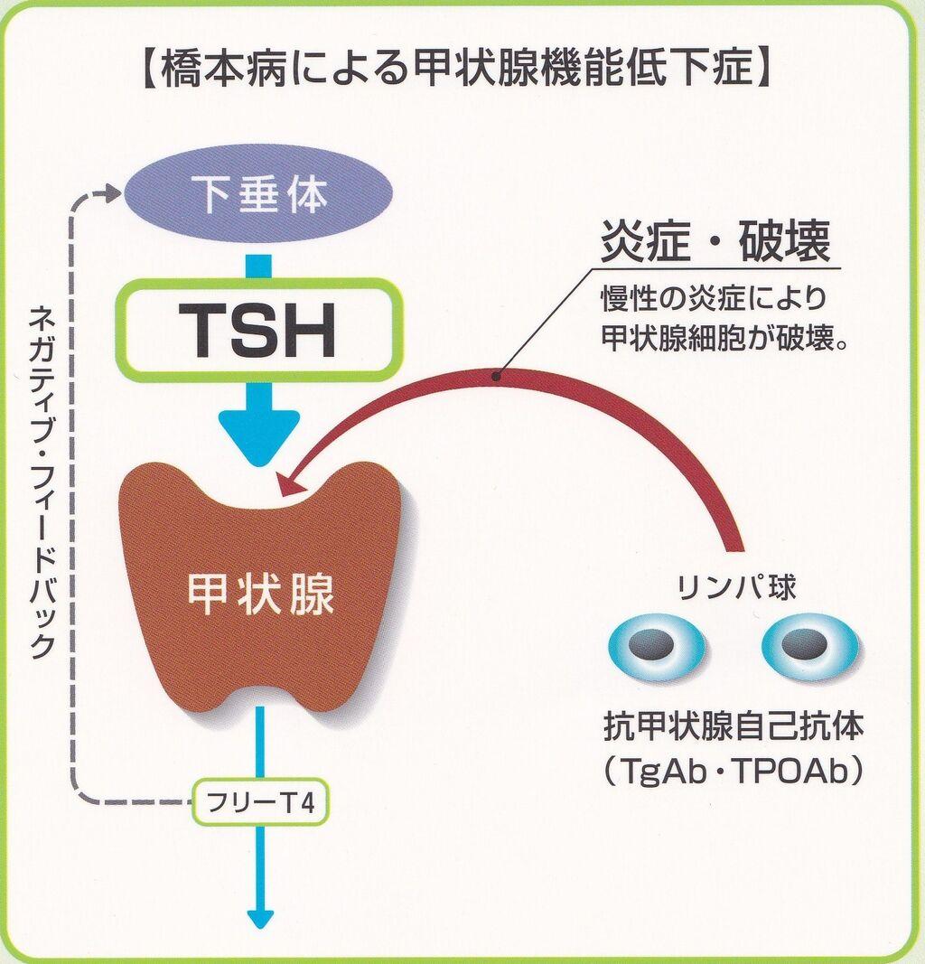 病 橋本 [医師監修・作成]甲状腺が腫れる「橋本病」とは?症状で見るバセドウ病との違い
