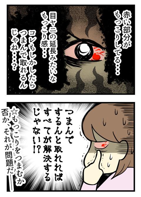 赤くなってる部分が盛り上がっているんです。目ヤニ?のような・・・?これはもしかしてつまんで取れる・・・のでは!?と鏡の前で葛藤しました!