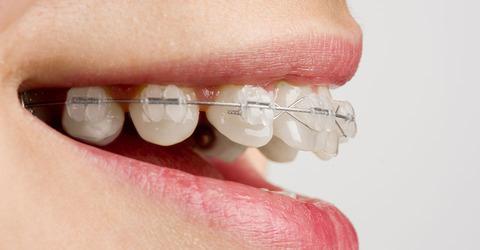 なぜ日本の女は歯並びが悪いのか