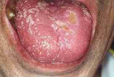 カンジタ性口内炎の画像