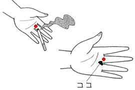 口内炎の治療、ツボ
