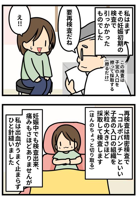 子宮頸部3