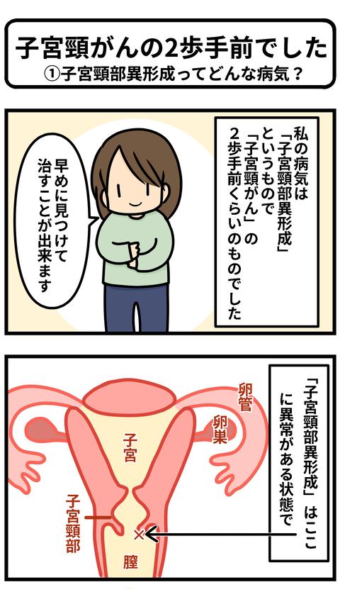 子宮頸部1