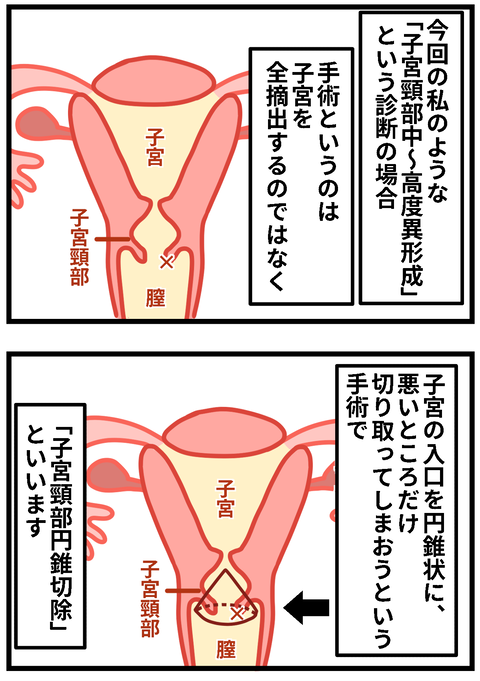 子宮4ー2