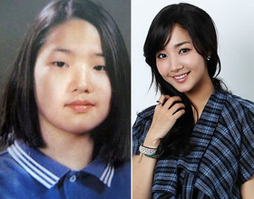 Korean Girl in Plastic Surgery6
