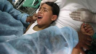 Jewish Circumcision 4
