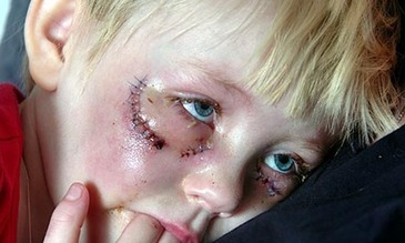 Swedish child beated by Muslims