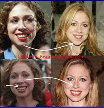 Chelsea Clinton 2