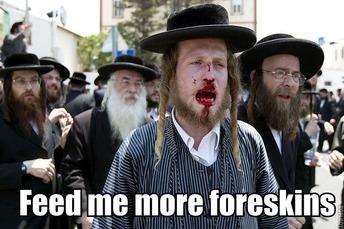 Jewish Circumcision 6