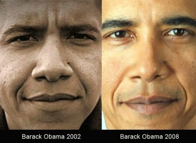 Obama Nose Job 1