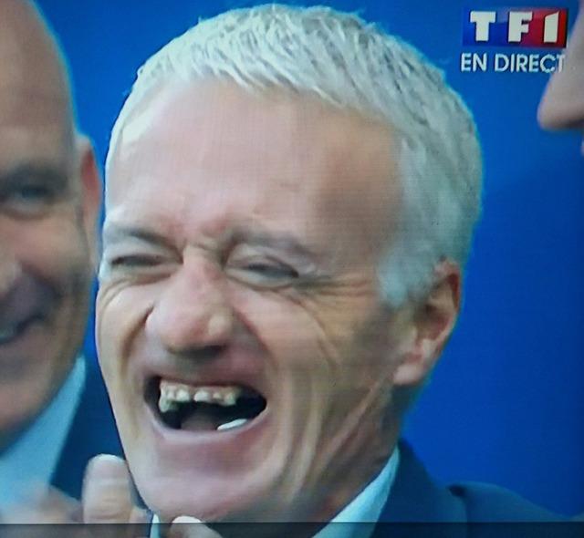 ◆悲報◆フランス代表監督ディディエ・デシャンの歯が虫歯だらけ…ストレスのせいか?