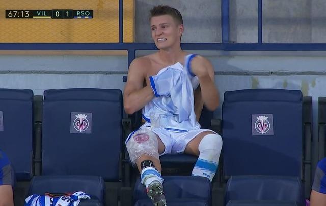 ◆リーガ◆膝負傷も強行出場中、交代直後のウーデゴールが痛々しすぎる件
