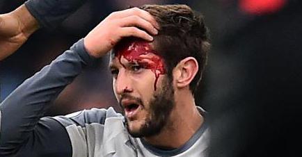 ◆悲報◆出るたびに負傷するリバポのララーナさんボーンマウス戦も流血!背番号なしに