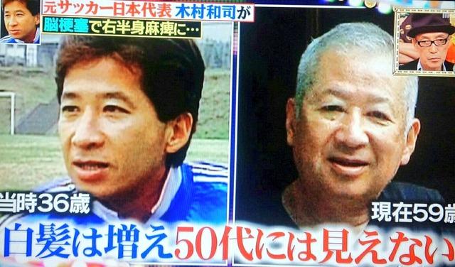◆悲報◆元日本代表の木村和司さん、脳梗塞などの闘病生活で想像以上に老けてしまったと話題に!