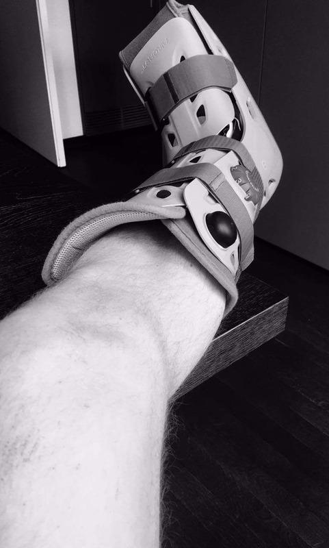 ◆画像◆CLレアル・マドリー戦で脚を骨折したバイエルンGKノイアー、ギプスでガチガチに固めた左足の画像UP「」