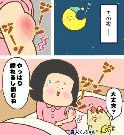 インフルエンザ予防接種後の痛みと腫れ