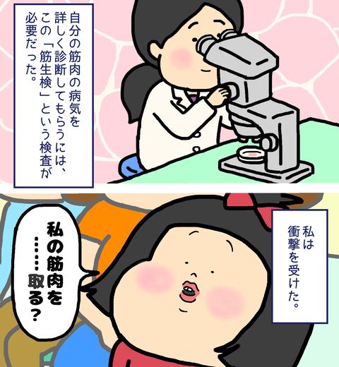 筋肉の病気の診断で必要な筋生検