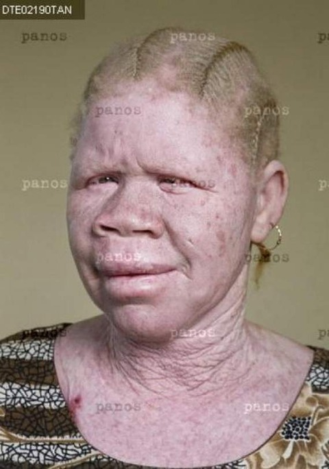 the-story-of-albino-people6-1297945366