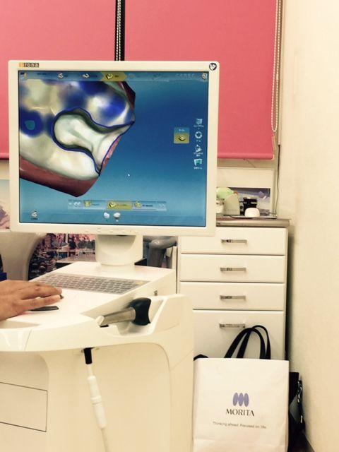 歯科もデジタル化!!