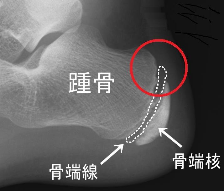 踵の痛み(シーバー病、セーバー病) : 信州伊那谷トレラン日記