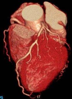 28-10-19心臓CT画像