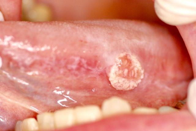 また、舌癌でした\u2026  ハワイ発、とっておきの歯科衛生士日記
