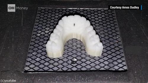 3Dプリンターを使って自分の歯を矯正03