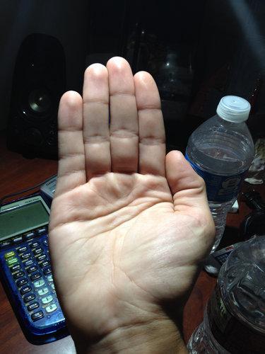指に余分なシワ04