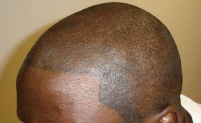 髪の毛タトゥー01