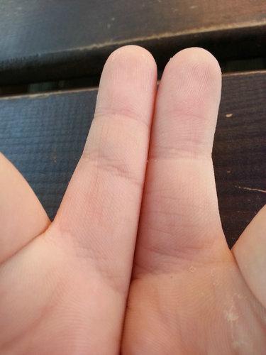 指に余分なシワ06