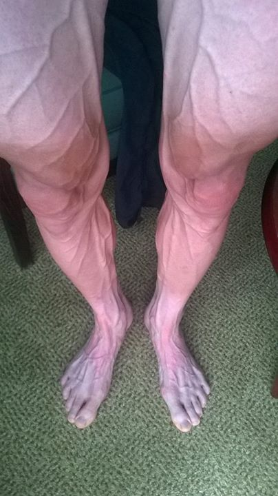ツール・ド・フランス走破後の選手の足01