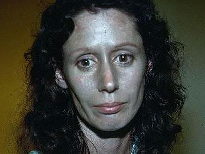 シルバーを含む薬を使ったら顔が銀色になった女性