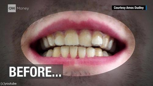 3Dプリンターを使って自分の歯を矯正06
