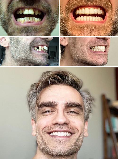 ずっと悪い歯だったのを治そうと決めた01
