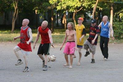 アルビノ黒人サッカーチーム02