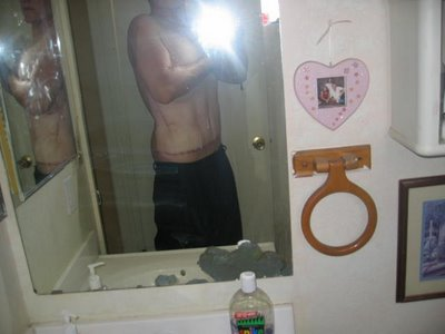 186kg痩せたダイエット16