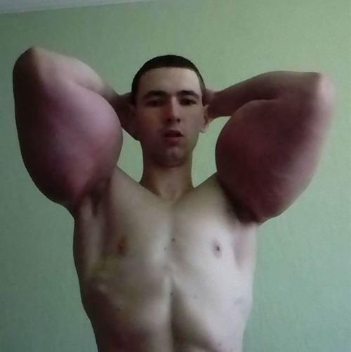 注射で偽の筋肉ムキムキになったロシア男性05