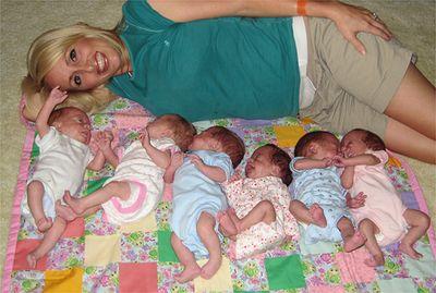 六つ子の妊娠・出産後