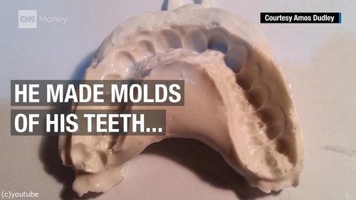 3Dプリンターを使って自分の歯を矯正02