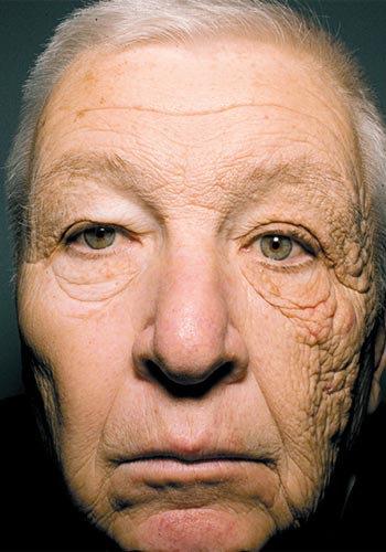 顔の半分だけ日光に照らされた結果01