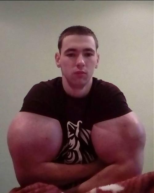 注射で偽の筋肉ムキムキになったロシア男性03