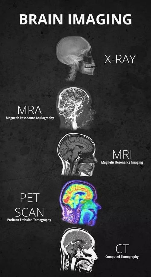 脳のイメージ画像01