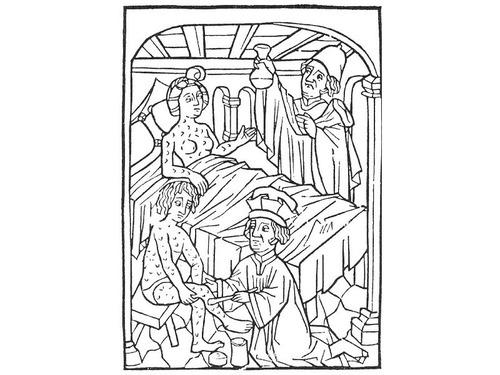 梅毒の歴史