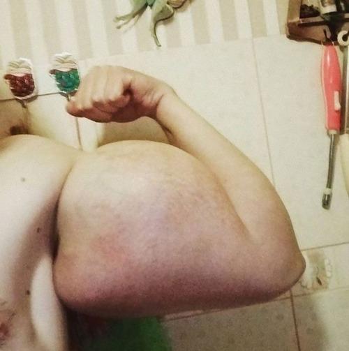 注射で偽の筋肉ムキムキになったロシア男性02