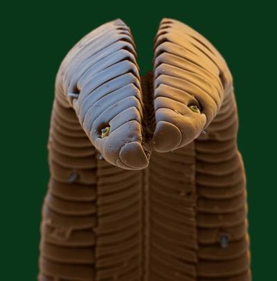電子顕微鏡の世界10