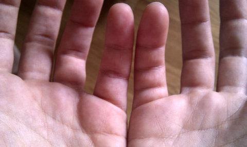 指に余分なシワ01