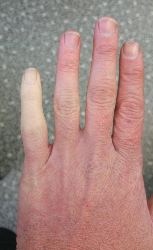 1年半前に小指を骨折01