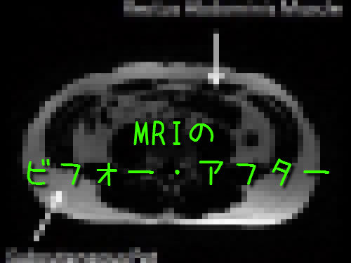 MRIのビフォー・アフター00