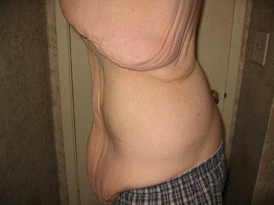 186kg痩せたダイエット02