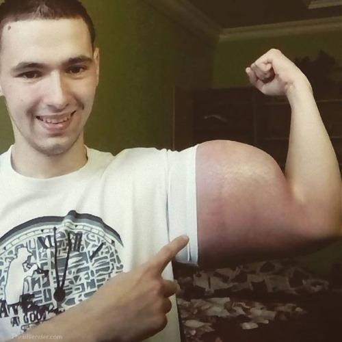 注射で偽の筋肉ムキムキになったロシア男性01